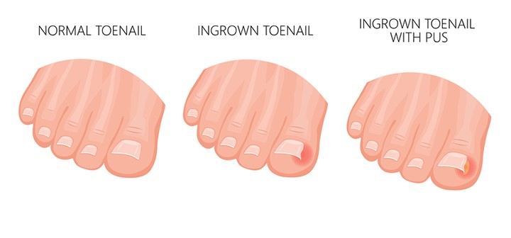 Ingrown Toenail Removal Cost  Symptoms