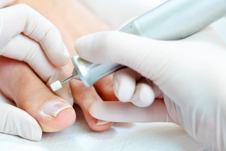 Ingrown Toenail Removal Cost